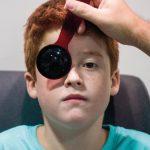 Com afecta l´ambliopia o ull dropo